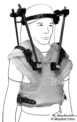 PE-Braces_Figure5